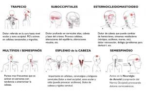 Puntos Gatillo de algunos músculos cervicales y las regiones de su dolor referido asociado a cefaleas tensionales